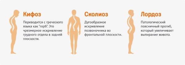 Признаки хондроза грудного отдела позвоночника thumbnail