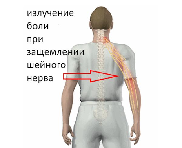 Излучение боли при защемлении шейного нерва