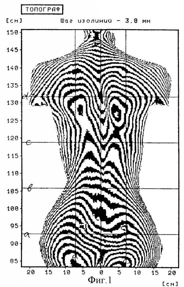 Изображение, полученное при топографии