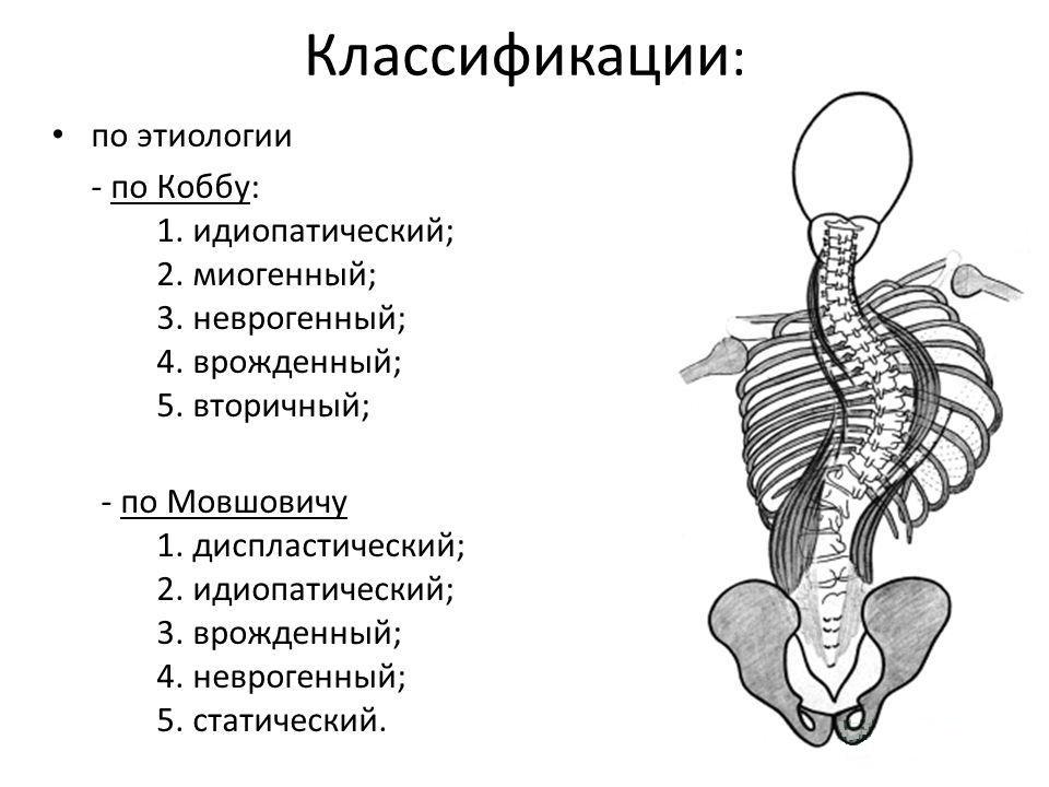 Классификации сколиоза