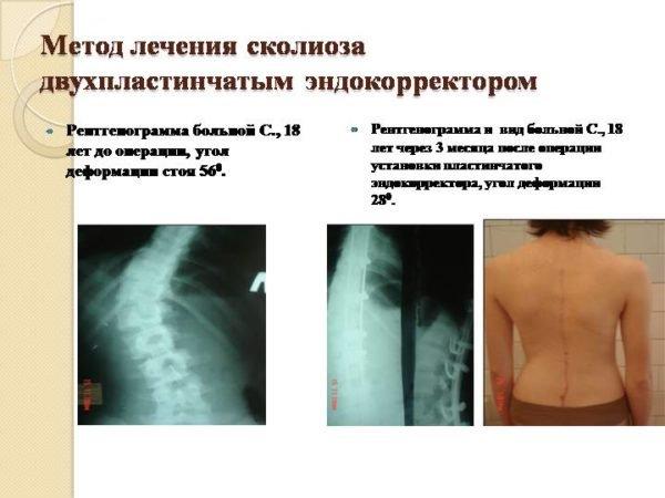Метод лечения сколиоза двухпластинчатым эндокорректором