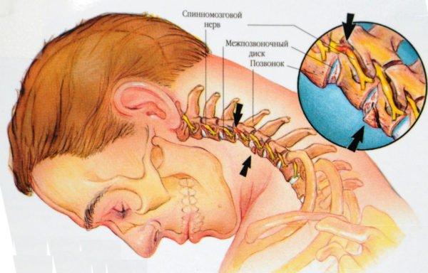 Межпозвоночная грыжа — серьезное заболевание
