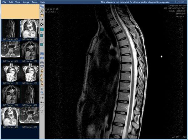 МРТ позвоночника - результаты