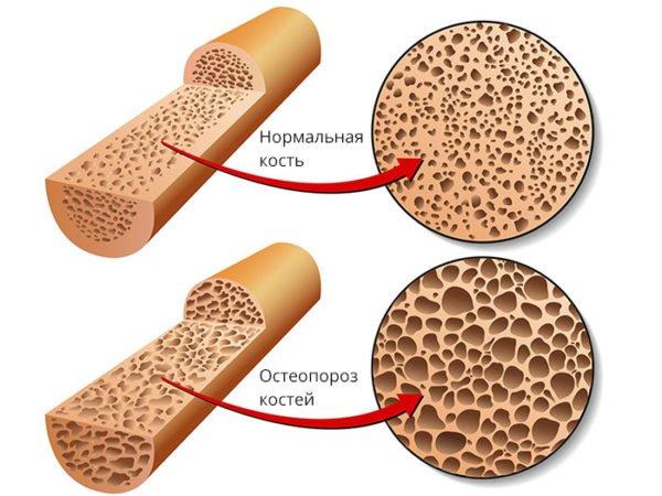 Нормальная костная ткань и при остеопорозе