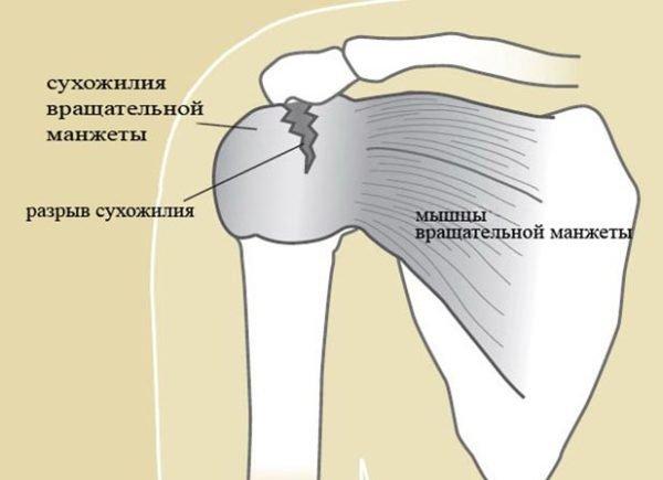 Патология вращательной манжеты плечевого сустава