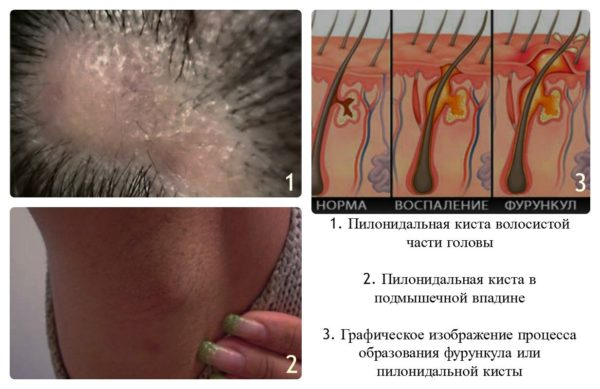 Пилонидальная киста на других частях тела
