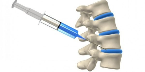 Подобная процедура не является методом лечения заболеваний спины, а лишь способом облегчить болевой синдром