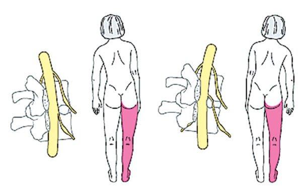 Пояснично-крестцовый сколиоз при грыже межпозвонкового диска вызывает боль в ноге
