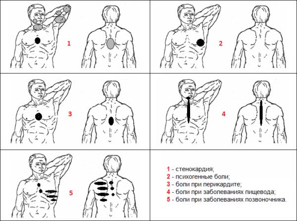 Признаки синдрома торакалгии