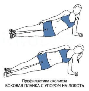 Упражнения при сколиозе поясничного отдела позвоночника thumbnail