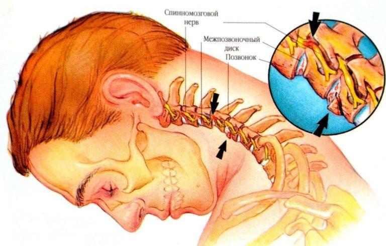Зрение может падать при шейном остеохондрозе