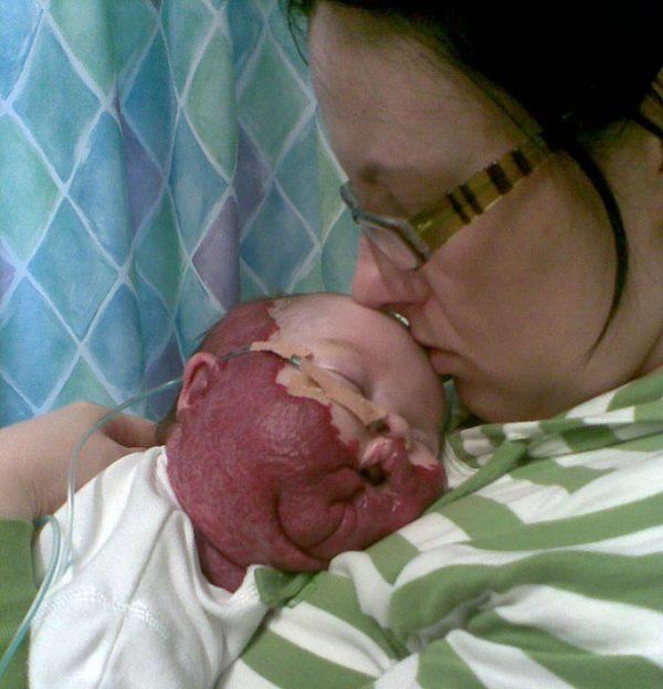Ребенок с гемангиомой должен постоянно наблюдаться у врача