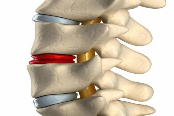 Самые распространенные последствия защемления нерва в спине – проявление осложнений в виде межпозвонковой грыжи, частичное или полное нарушения двигательной функции, мышечные спазмы