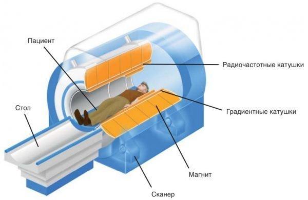 Схема аппарата МРТ