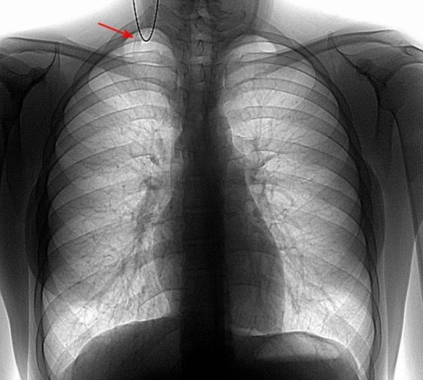 Симптом добавочного шейного ребра