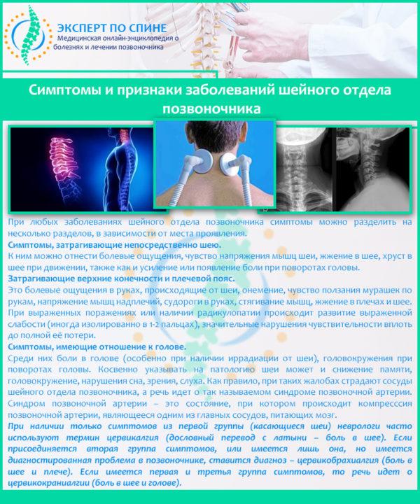 Симптомы и признаки заболеваний шейного отдела позвоночника