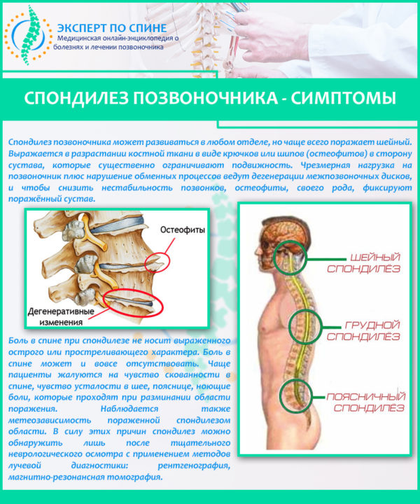 Симптомы спондилеза позвоночника