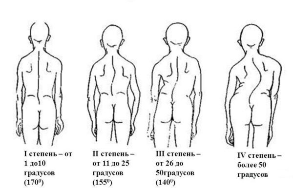 Сколиоз, классификация