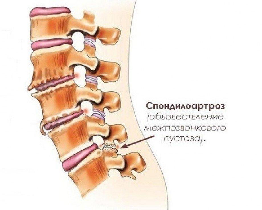 Врач спондилоартроз грудного отдела позвоночника