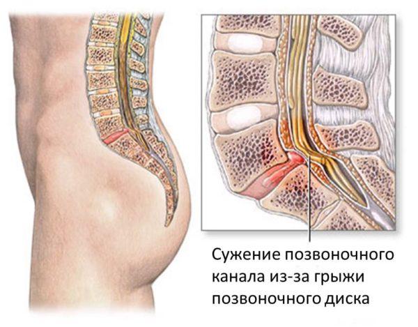 Стеноз позвоночного канала - это сужение поясничного или шейного отдела позвоночного канала