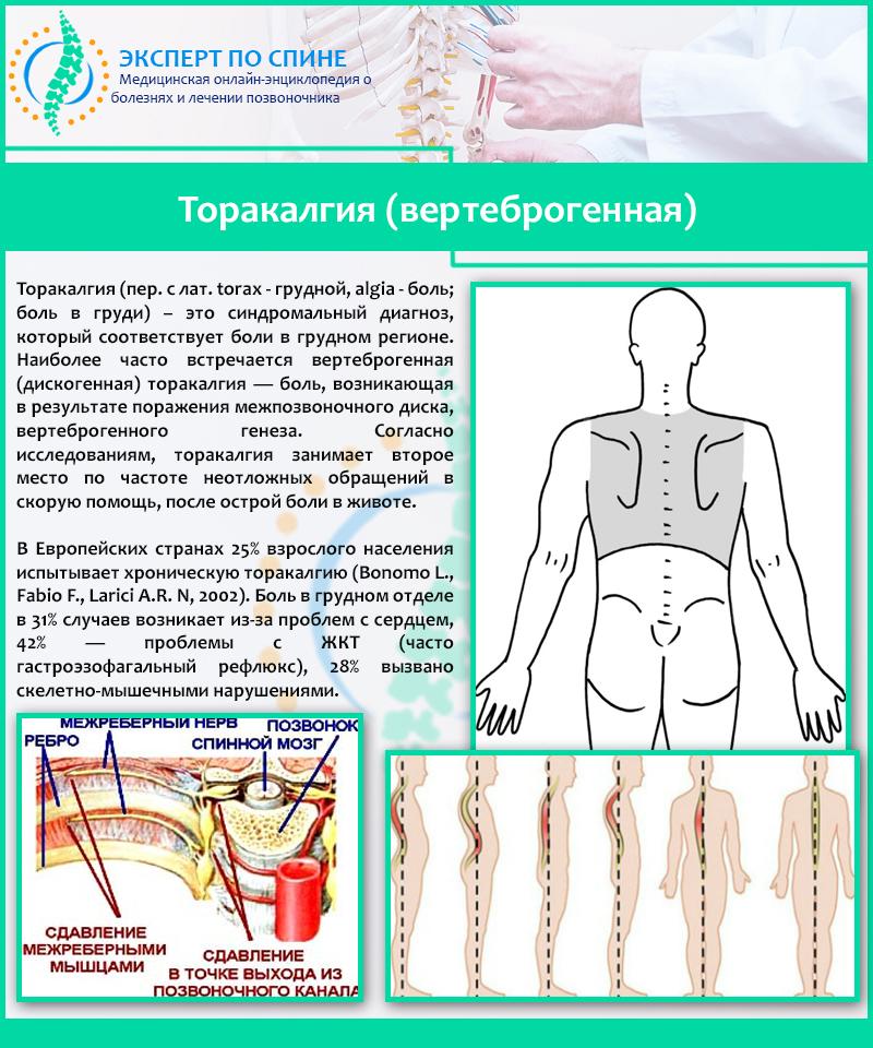 Грудной остеохондроз и вертеброгенная торакалгия