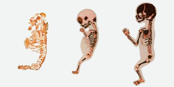 Три стадии отногенеза позвоночника у человека