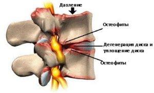 Патологии костной ткани