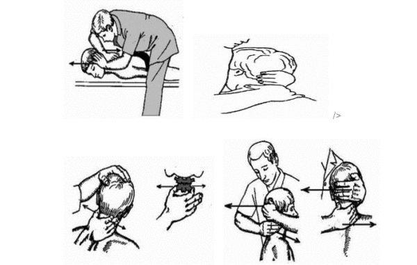 Мобилизация и иммобилизация (замыкание) шейного отдела позвоночника с помощью бокового наклона