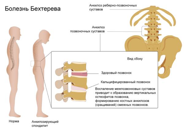 Болезнь Бехтерева или анкилозирующий спондилит (спондилоартрит) является хроническим воспалительным заболеванием, которое влияет на позвоночник, прежде всего, крестцово-подвздошные суставы