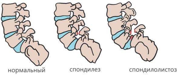 Заболевания позвонков поясничного отдела