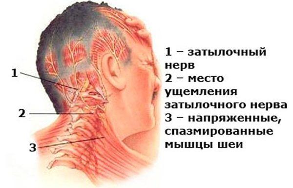 Защемление затылочного нерва