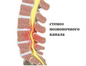 Стеноз (сужение) позвоночного канала