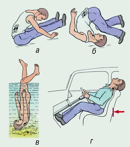 Травмы поясничного отдела позвоночника