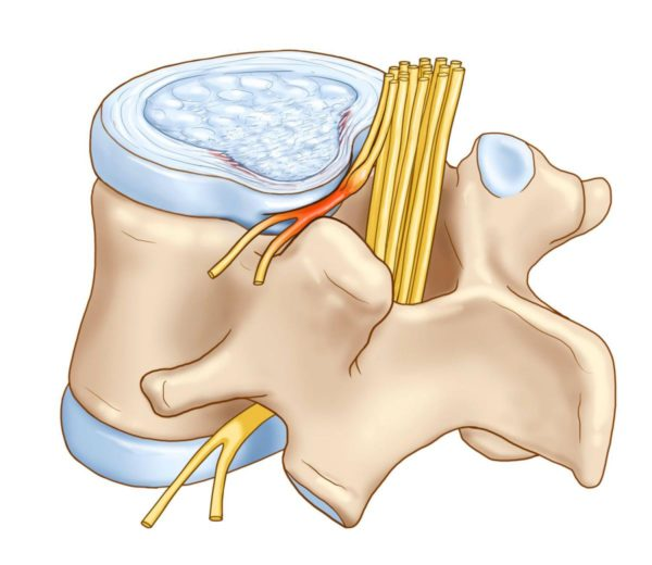 Пучки нервов выходят их фасеточных суставов