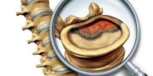 Остеохондроз поясничного отдела остеофиты thumbnail