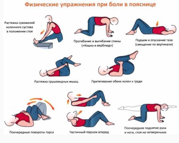 Упражнения для лечения ишиаса