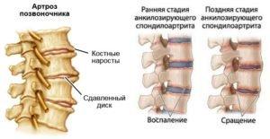 Артрозы и артриты