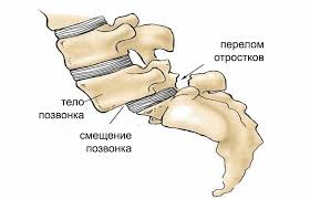 Смещение межпозвоночного диска со своего физиологического места
