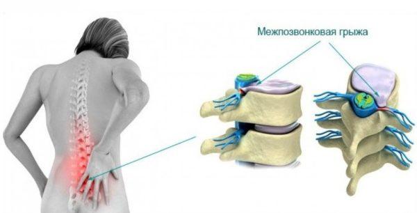 Боль в пояснице при межпозвоночной грыже