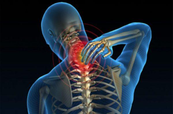 Боль в шее — основной симптом миелопатии