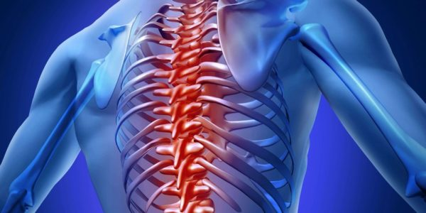 Боль в верхней части спины