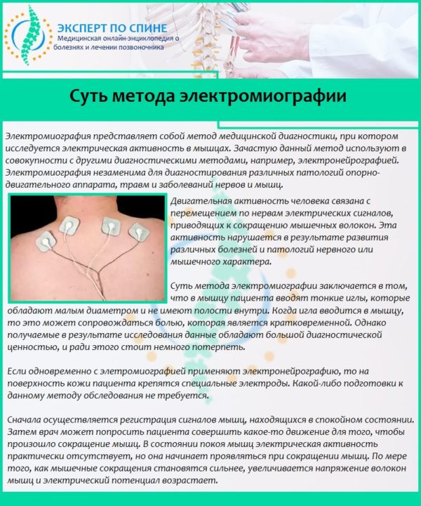 Суть метода электромиографии