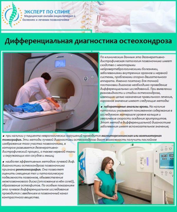 Дифференциальная диагностика остеохондроза