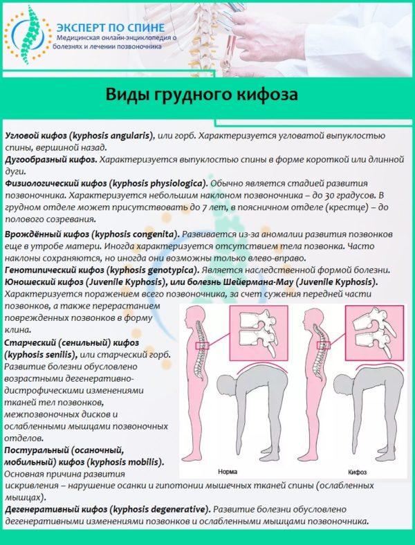 Виды грудного кифоза