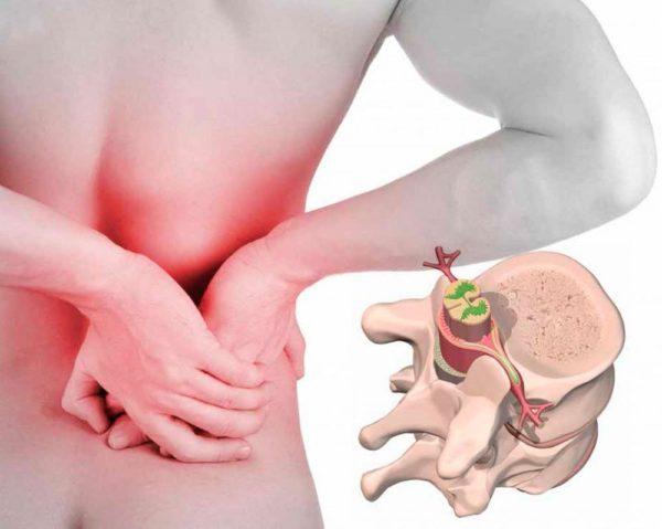 Боли в спине при грыже позвоночника