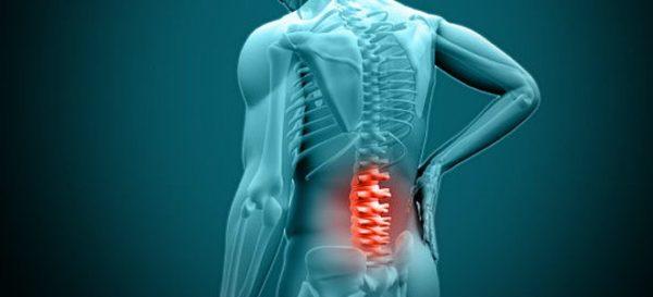 Часто болезнь появляется на фоне остеохондроза