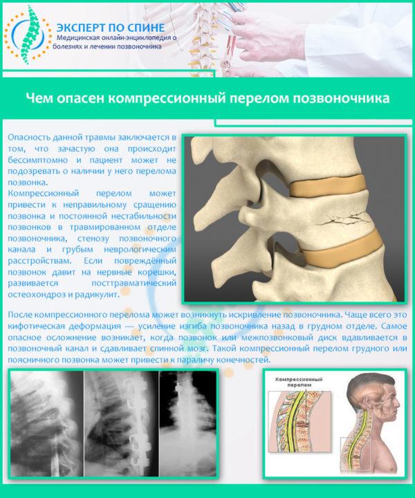 Чем опасен компрессионный перелом позвоночника