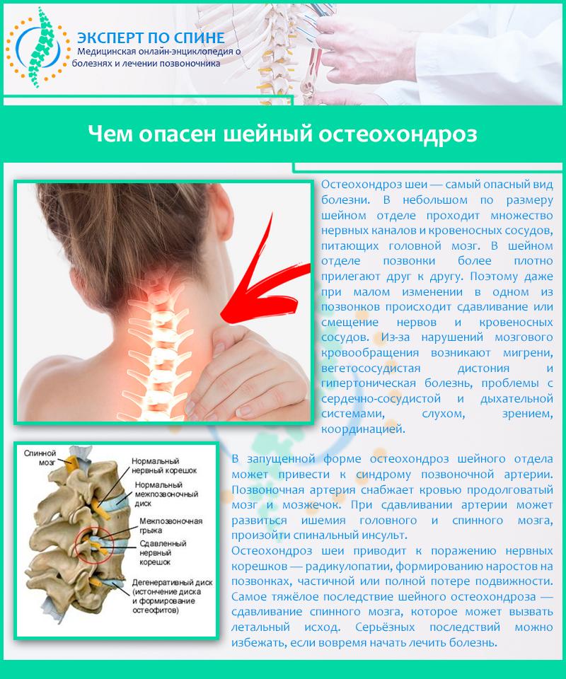 Лечение острого остеохондроза шейного отдела позвоночника лекарства