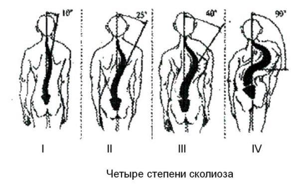 Четыре степени сколиоза