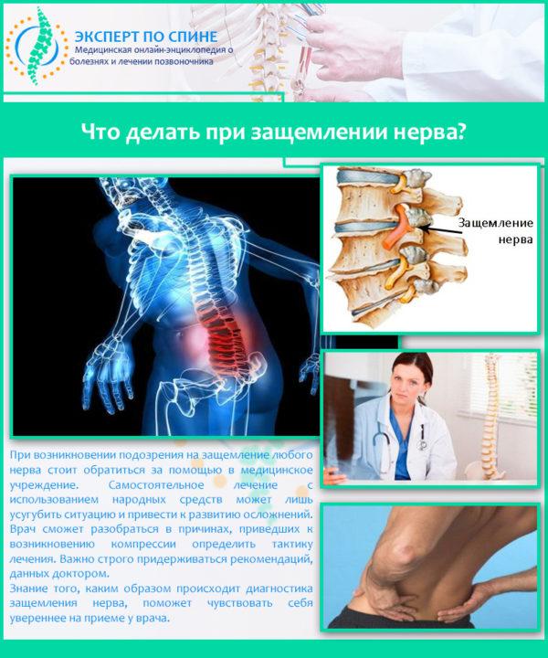 Что делать при защемлении нерва